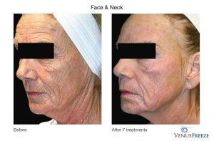 1. Huidverstrakking - huidversteviging , gezicht en hals, Corporelle
