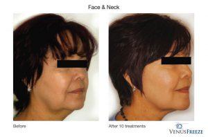 2. Huidverstrakking - huidversteviging, gezicht en hals, Corporelle