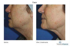 3. Huidverstrakking - huidversteviging, hals, Corporelle