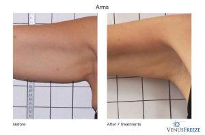 4. Huidverstrakking - huidversteviging, armen, Corporelle