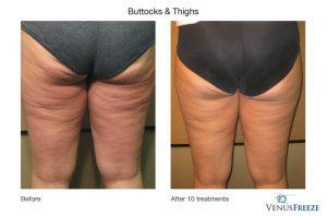 8. Huidverstrakking - huidversteviging, benen en dijen, Corporelle