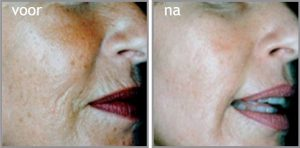 Dermaroller Anti-aging2