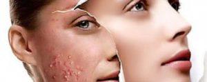 Chemische peeling, DermaPeeling, Acne