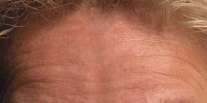 Rimpelbehandeling 1 - voor